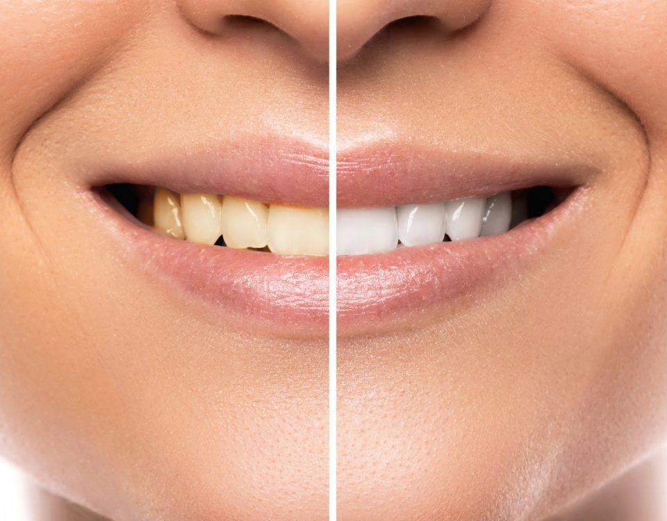 Skuteczne wybielanie zębów domowymi sposobaAmi albo lampą beyound